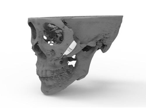 시지바이오, 3D프린팅 맞춤 인공광대뼈 식약처 승인