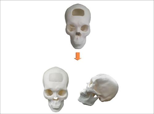 시지바이오, '특수재질두개골성형재료' 의료기기 품목 허가 승인