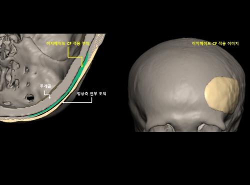 시지바이오, 3D 임플란트 '이지메이드-CF' 두개골 수술 성공